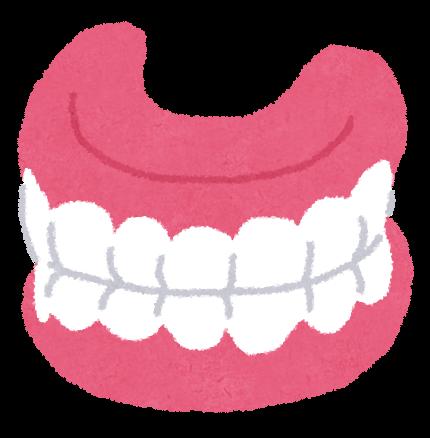 入れ歯の作製についての画像